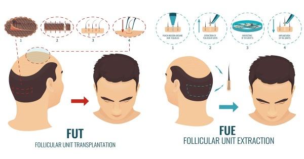 Cấy tóc FUE được nhiều khách hàng lựa chọn