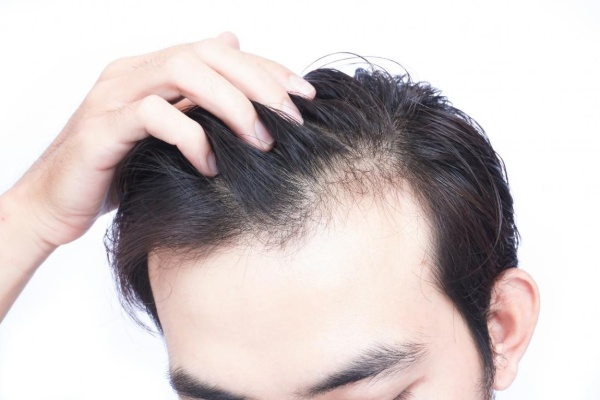Cấy tóc tự thân không xâm lấn da đầu, phục hồi nhanh