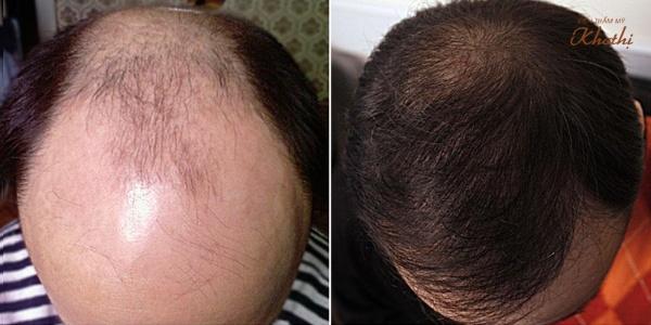 Chi phí cấy tóc tại New Hair sẽ được tính dựa số lượng sợi tóc thay vì số lượng nang tóc