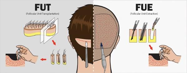 Cấy tóc giá bao nhiêu còn phụ thuộc nhiều vào kỹ thuật mà bạn lựa chọn