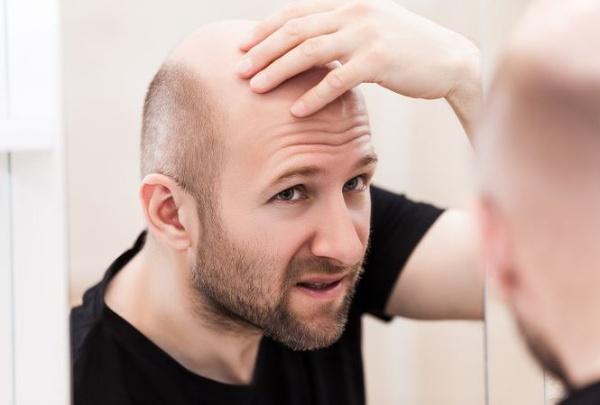 Tùy vào mức độ hói và số lượng tóc cấy mà chi phí thực hiện sẽ thay đổi