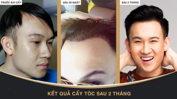 Kết quả mang lại sau 2 -3 tháng từ Dương Triệu Vũ khi lựa chọn cấy tóc tại New Hair