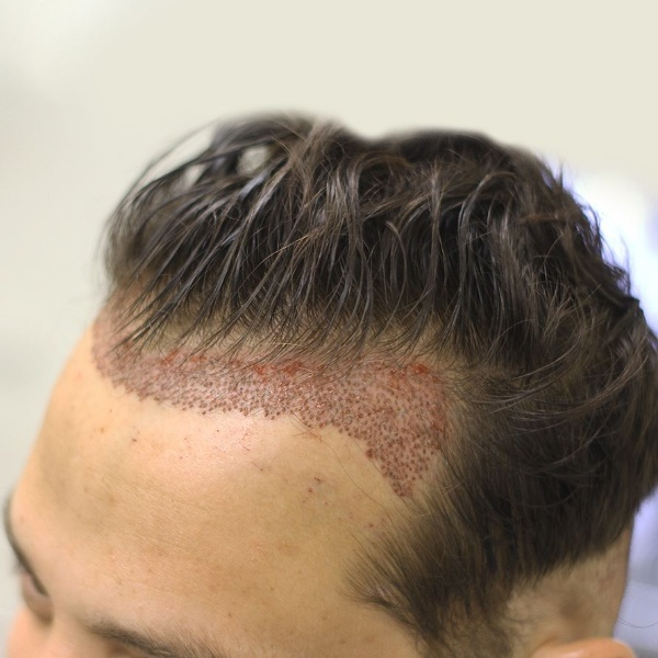 Cấy tóc tự thân FUE là kỹ thuật bóc tách từng nang tóc