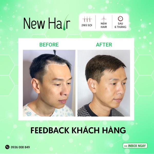 Cấy tóc tự thân sẽ đạt hiệu quả cao nếu bạn lựa chọn địa điểm thực hiện có uy tín