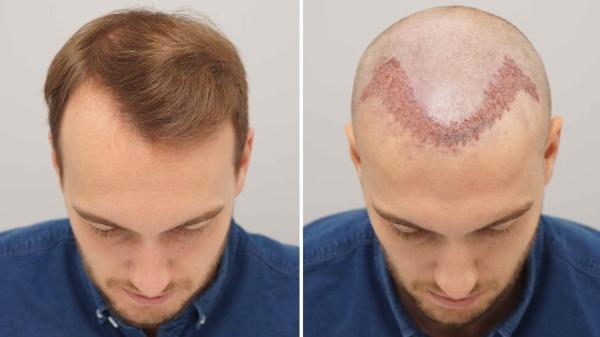 Cấy tóc tự thân giúp khắc phục các tình trạng thưa tóc, hói đầu. Nâng cao tính thẩm mỹ cho bạn