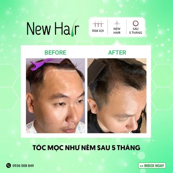 Chỉ 5 tháng sau khi cấy, tóc ở vùng da đầu bị hói đã mọc dày và dài hơn